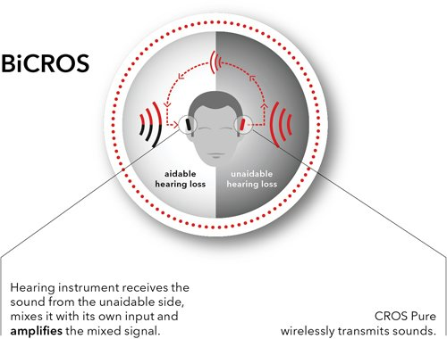 Cros And Bicros Hearing Aids Why When And The Results