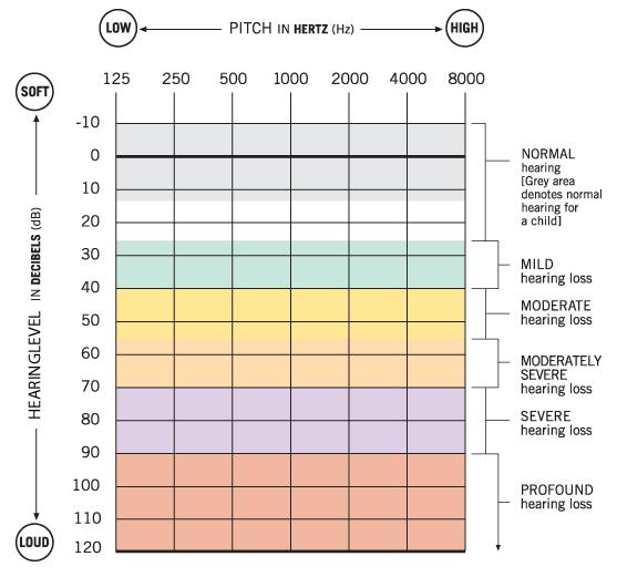 Understanding an audiogram (hearing test results)