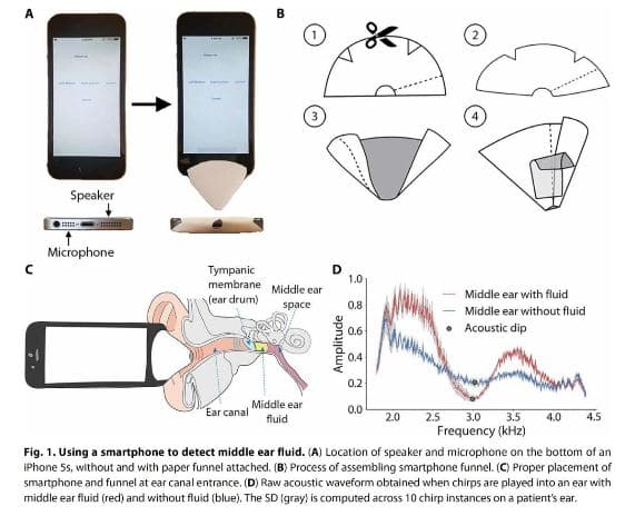 Smartphone Detection of Mid Ear Infection