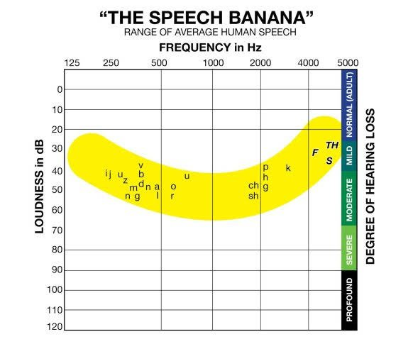 The Speech Bananna